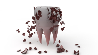 The Long-Term Repercussions of Neglecting Your Oral Health | Coral West Dental