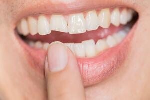 Can My Damaged Tooth Be Saved | Coral West Dental
