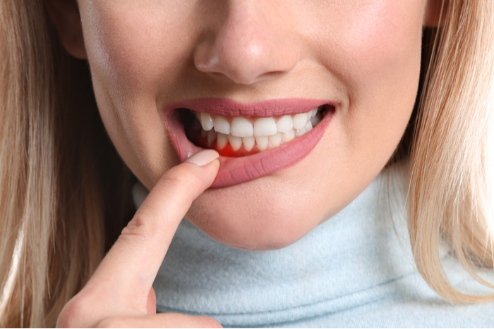 Determine if You are At Risk for Periodontal Disease | Coral West Dental
