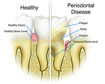 Get Answers to Your Questions About Gum Disease | Coral West Dental