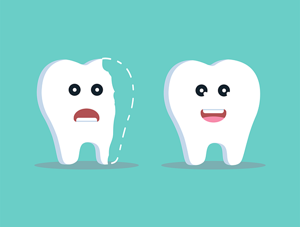 Options for Restoring a Chipped Tooth | Coral West Dental
