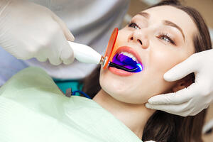 Professional Whitening Is Worth The Cost | Coral West Dental