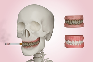 Things You Risk by Neglecting Your Oral Health | Coral West Dental