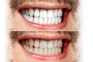 4 Options for Whitening Your Teeth