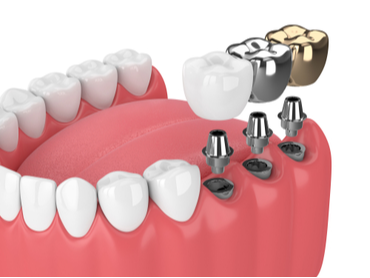 Cosmetic Dental Procedures that are More than Just Surface Deep