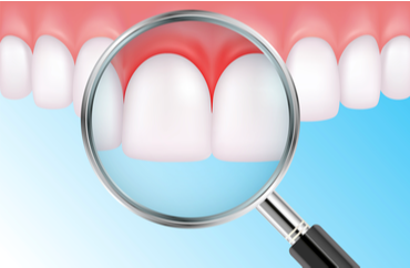 Is It Possible for Gum Disease to Be Cured? | Coral West Dental