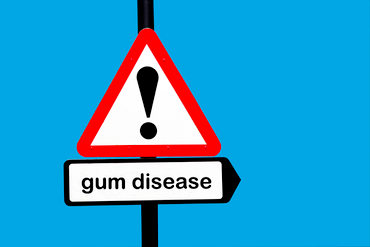 Learn to Identify the Signs of Gum Disease | Coral West Dental