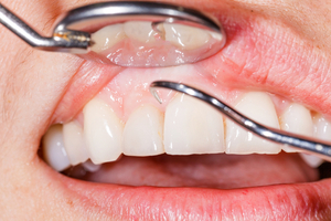 Protect Yourself from Gum Disease with a Few Intentional Habits