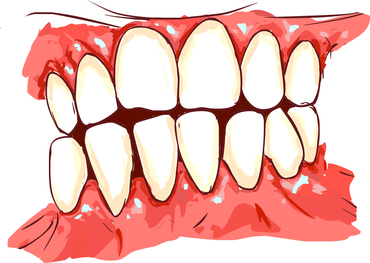 Quick Tips for Treating Gum Disease at Home | Coral West Dental
