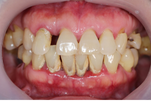 Serious Potential Side Effects of Untreated Gum Disease
