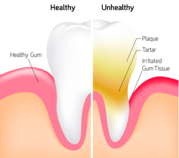Steps to Getting Healthy Gums Once Again | Coral West Dental