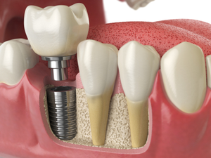 Three Reasons to Choose Dental Implants Over Conventional Bridges or Dentures